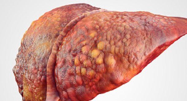 درمان کبد چرب بهترین و سریعترین راه های درمان کبد چرب - بلاگ کرفس