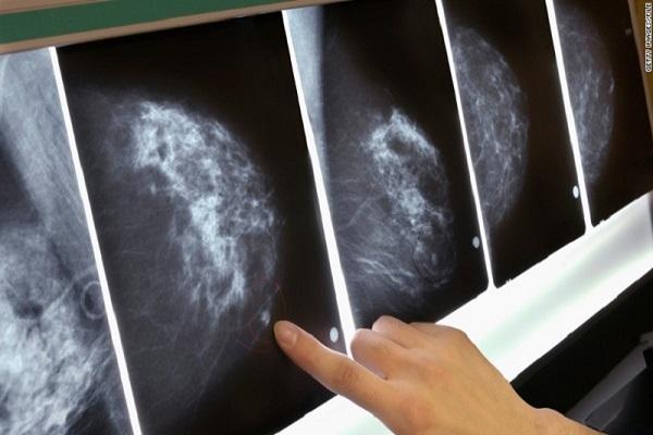 علائم سرطان داکتال