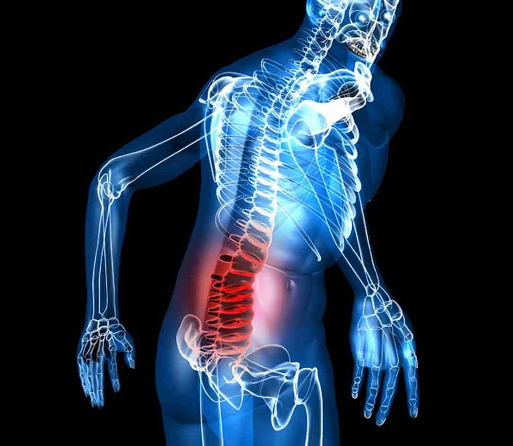 علائم سیاتیک پای چپ / درمان سیاتیک پای چپ