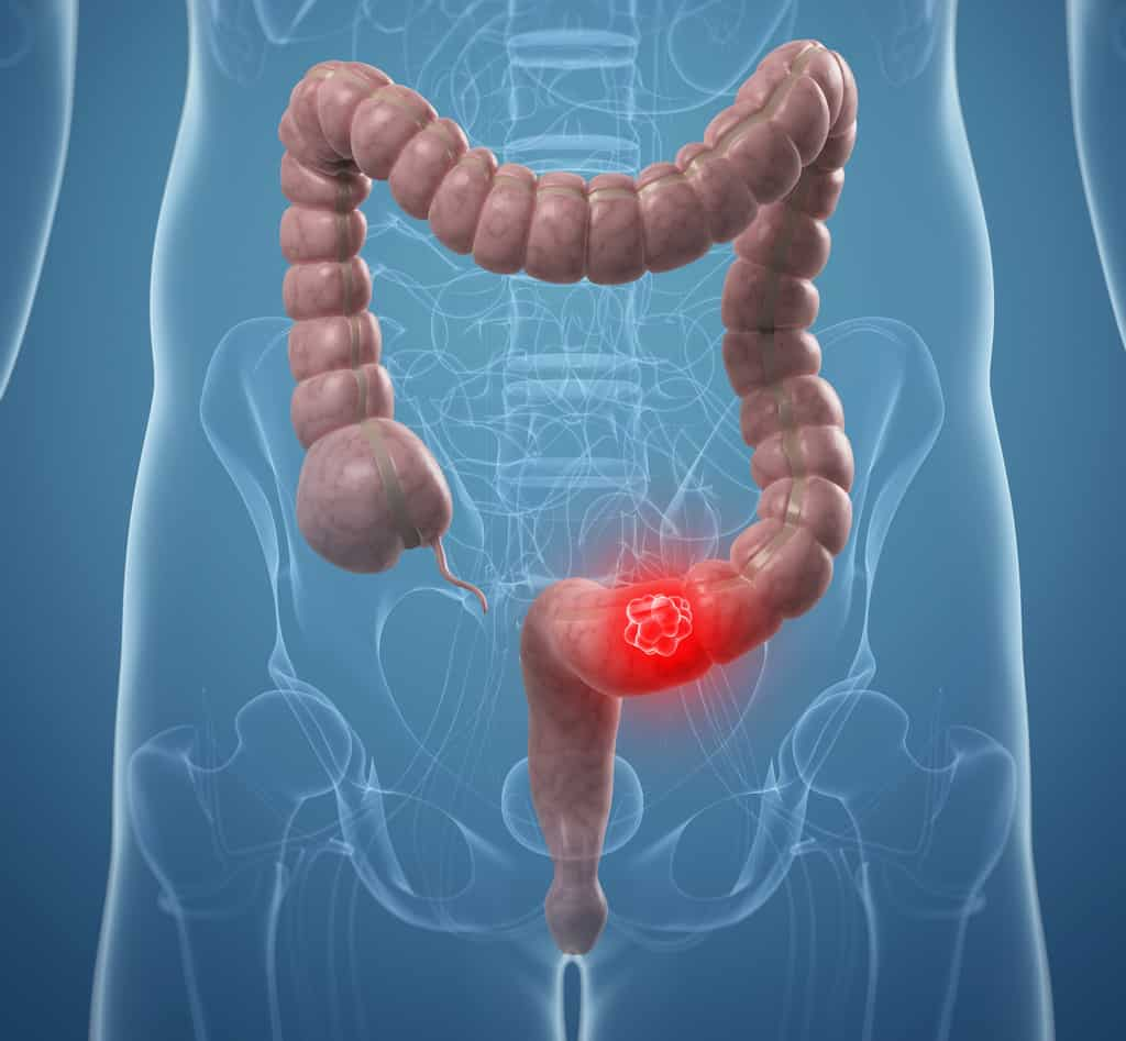 سرطان روده بزرگ بدخیم / علائم هشدار دهنده سرطان روده