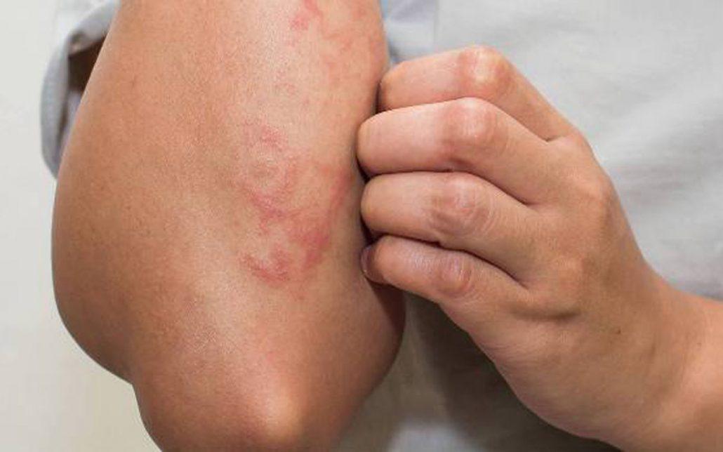 در زمانی که به اگزمای شدید پوستی مبتلا هستید،