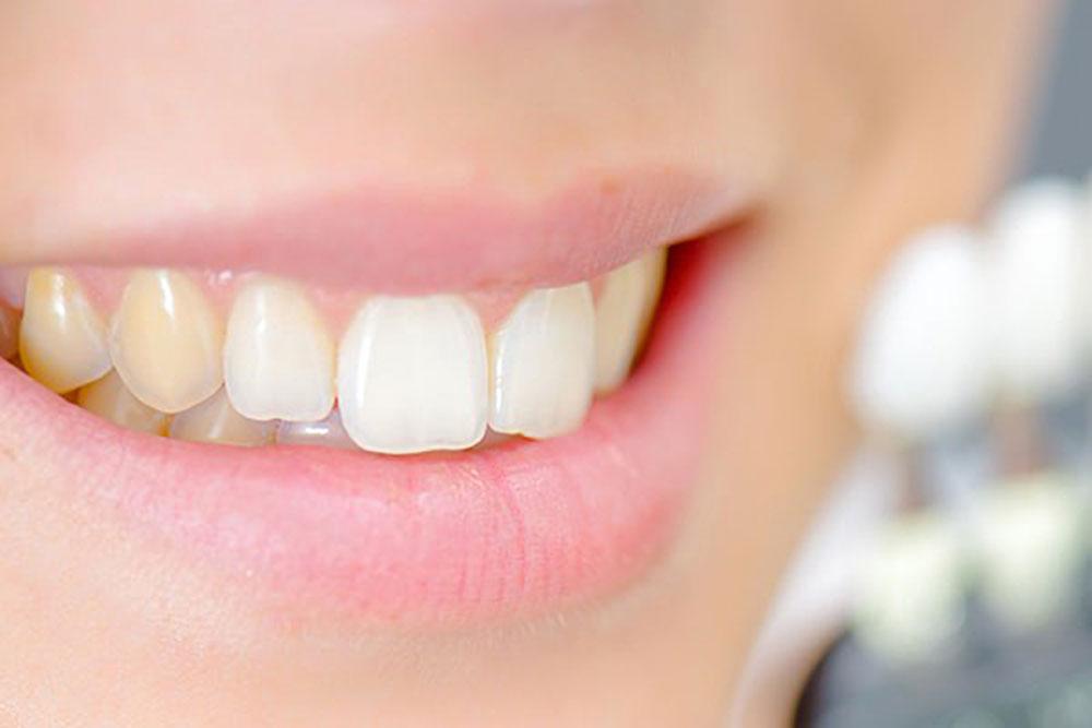 جلوگیری از خراب شدن دندان در بارداری