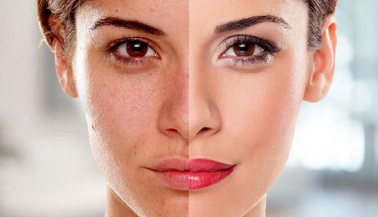 داروی گیاهی برای روشن شدن پوست صورت / دارو برای سفید شدن پوست