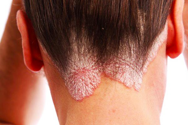 Psoriasis-of-the-head