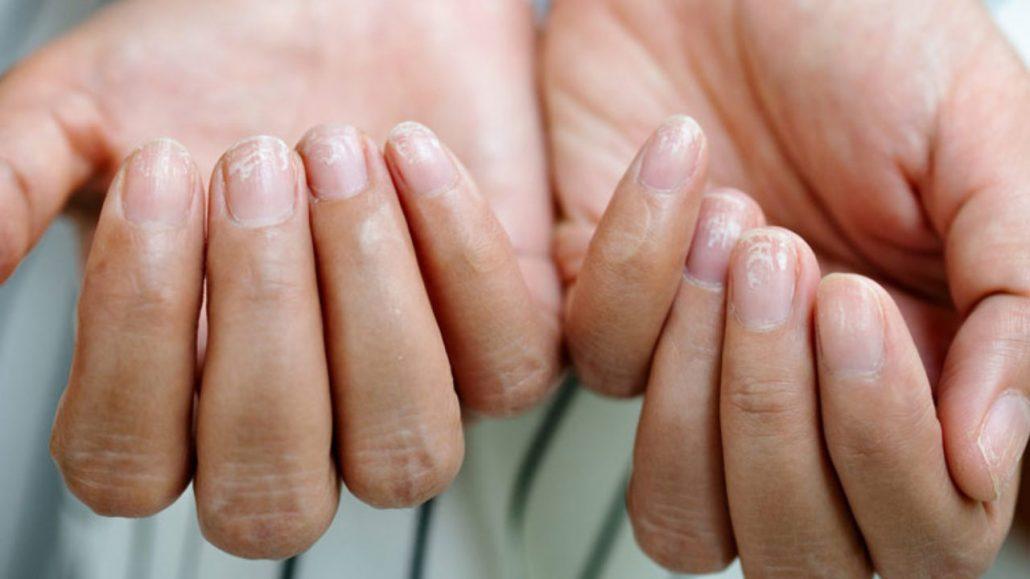 پوسته شدن دور ناخن/ درمان کنده شدن پوست اطراف ناخن/ ترمیم پوست دور ناخن