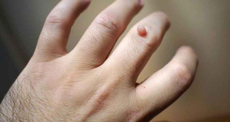 یکی دیگر از راههای درمان زگیل صورت در طب سنتی استفاده از موم است.