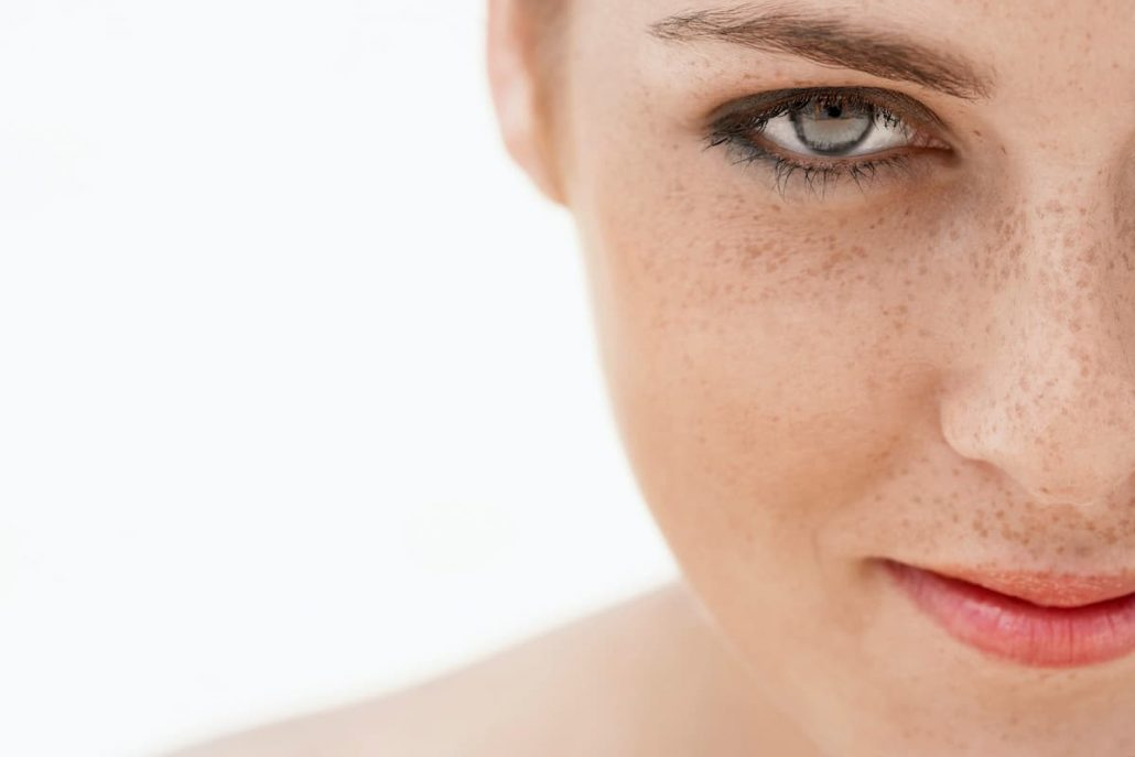 مهمترین دلیل ابتلا به کک و مک، اشعه مضر نور خورشید است.