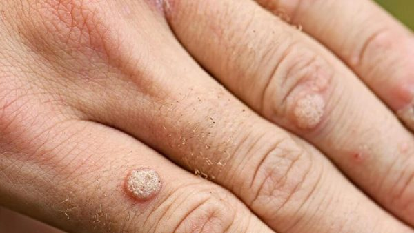 یکی از راههای درمان زگیل دست کودکان و بزرگسالان استفاده از روغنی است