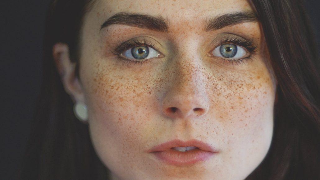 سریع ترین راه از بین بردن لک صورت چیست؟
