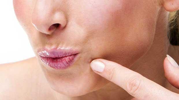 درمان زگیل صورت در طب سنتی استفاده از قرص ویتامین C
