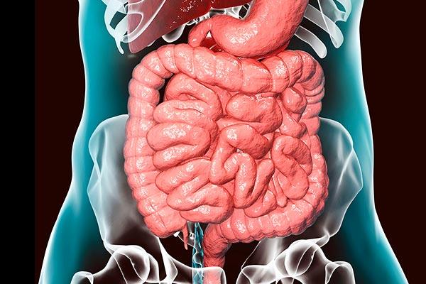 intestinal-lymphoma