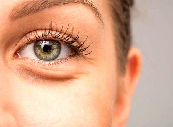 علت پف زیر چشم چیست | درمان قطعی پف زیر چشم در خانه
