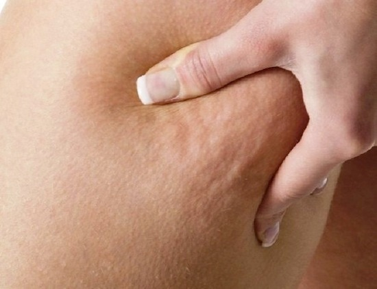 سلولیت پشت ران یک بیماری پوستی بیخطر است