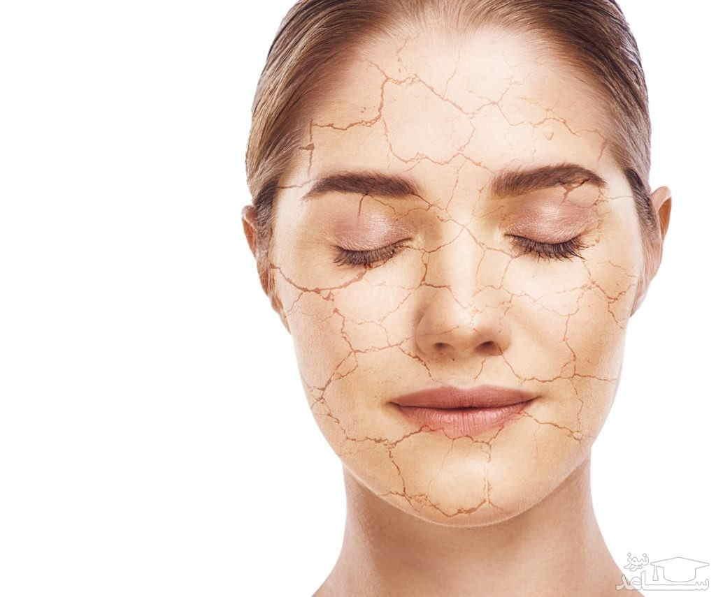 دهیدراته شدن پوست صورت با دوشهای طولانی