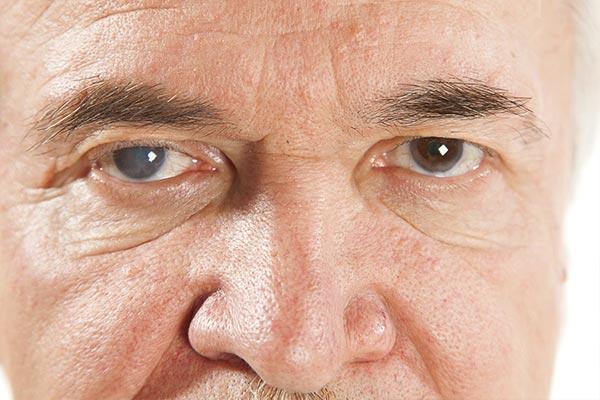 عمل آب مروارید چشم با لیزر