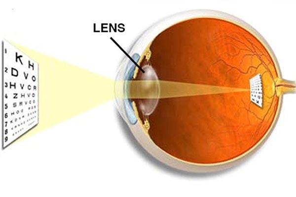 لنز برای ضعیفی چشم