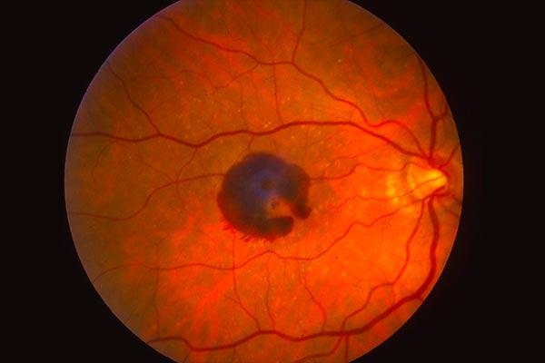 بیماری های شبکیه چشم